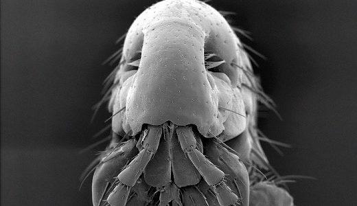 Scanning electron micrograph, black&white
